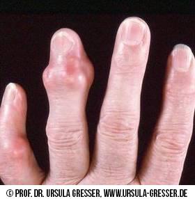 Die Darstellung zeigt Finger-Tophi. gefunden auf: https://www.was-ist-gicht.de/symptome.html